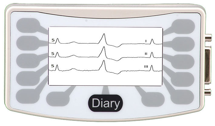 NorthEast Monitoring DR181 3-Channel Holter and Event Recorders front image viewing screen
